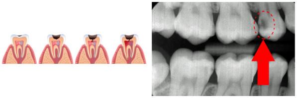 Karies på tennene